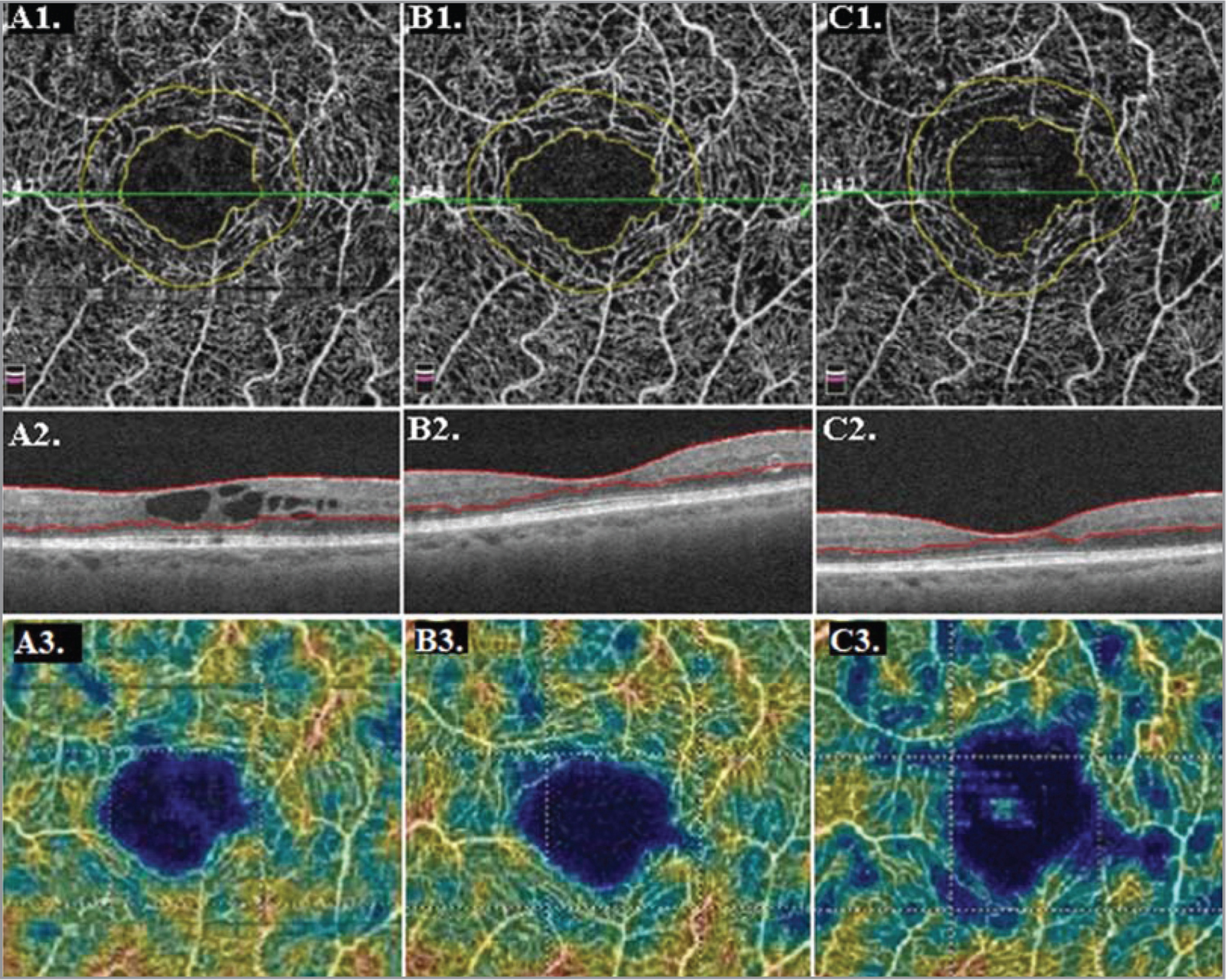 Optical coherence tomography angiography (OCTA), optical coherence tomography (OCT), and capillary perfusion density (CPD) analysis in a single study eye with center-involved diabetic macular edema (DME). (A1) Baseline foveal avascular zone (FAZ) area analysis; FAZ area = 0.592 mm2. (A2) Baseline OCT. (A3) Baseline CPD analysis. (B1) FAZ area analysis at Month 6; FAZ area = 0.635 mm2. (B2) Month 6 OCT. (B3) Month 6 CPD analysis. (C1) FAZ area analysis at Month 24, which depicts enlargement of FAZ from baseline; FAZ area = 0.685 mm2. (C2) Month 24 OCT with resolution of DME. (C3) Month 24 CPD analysis showing loss of perfusion density from baseline.