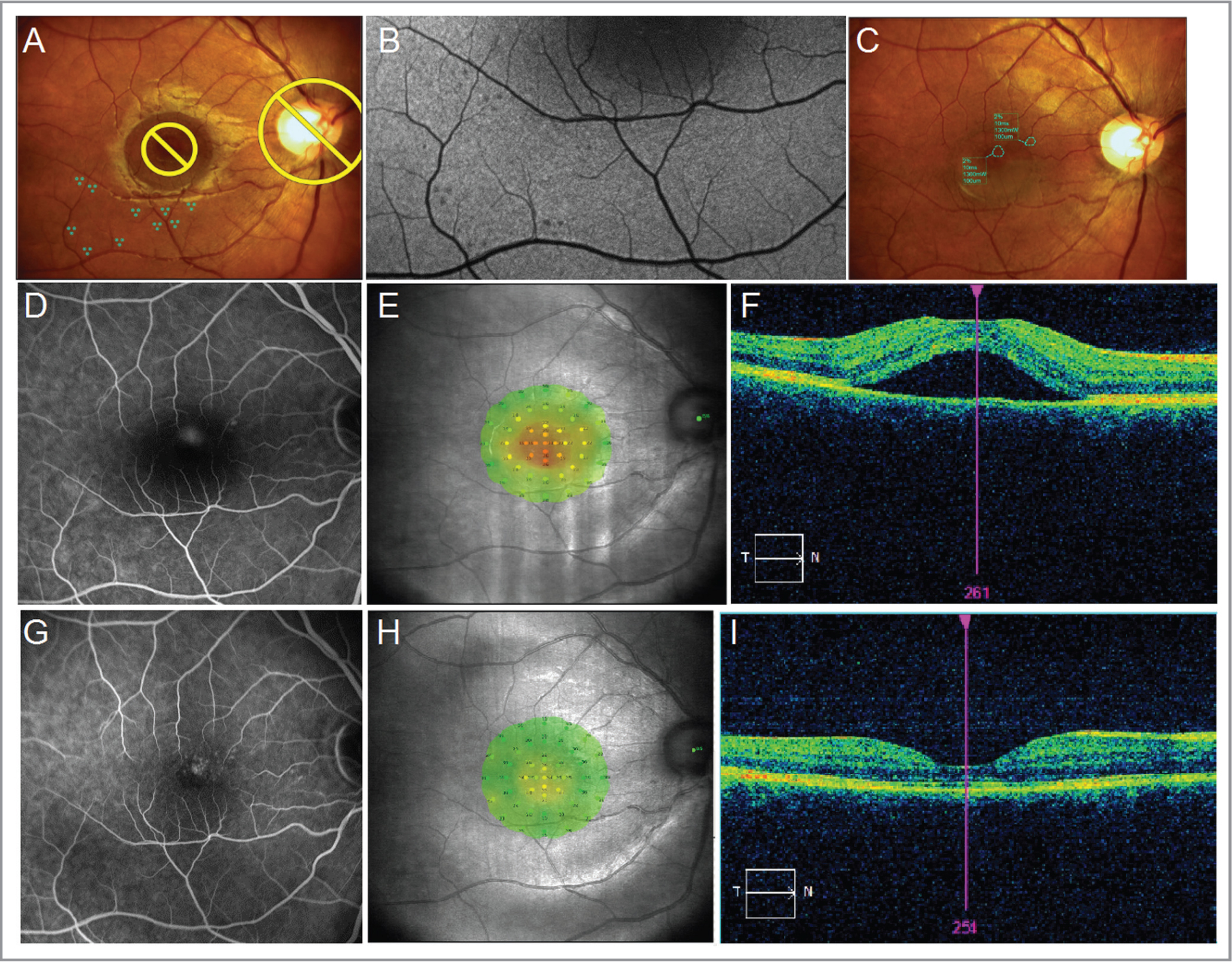 Clinical example. Line 1: Navilas plans. (A) Test plan for Navilas 577s. (B) Autofluorescence demonstrating titration effects. (C) Treatment protocol with the Navilas 577s. Laser applications are placed close to each other, completely covering the point of leakage and retinal pigment epithelium (RPE) defect with minimum power (1.3 W), whereby there are visible signs of RPE damage revealed in the autofluorescence. Line 2: Baseline. (D) Fluorescein angiography (FA). The leaking point in the foveal avascular zone is observed. (E) Computerized microperimetry. Retinal sensitivity: 24.2 dB. A decrease in central macular sensitivity can be observed. (F) Optical coherence tomography. Subretinal fluid (SRF) in the macula. Line 3: 3 months. (G) FA. There are no visible changes in areas of laser treatment and testing. (H) Microperimetry. Retinal sensitivity: 27.9 dB. (I) Optical coherence tomography. SRF is completely resorbed.