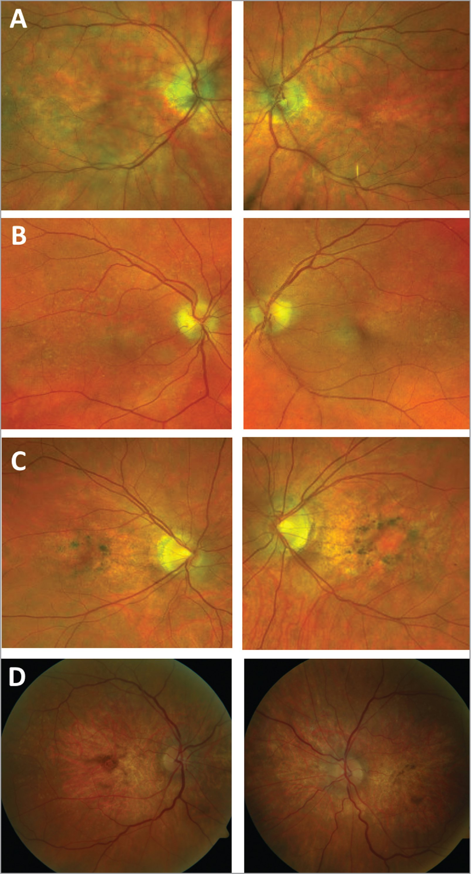 Color fundus photos of Patients 1 through 4 in panels A to D respectively. All demonstrate retinal pigment epithelium changes centered on the macula that appear more subtle than the corresponding autofluorescence findings. Pigment clumping is especially notable in Patients 3 and 4 (C, D) and foveal changes appear consistent with underlying atrophy in Patient 4 (D).