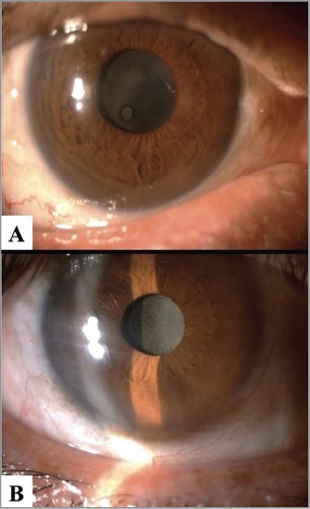 Opacified intraocular lens (IOL) was diagnosed on slit-lamp biomicroscopy. Bulky deposits could be easily seen (A); however, more fine and diffuse deposits located on the surface of the IOL optic required more elaborate examinations with slit-lamp (B).