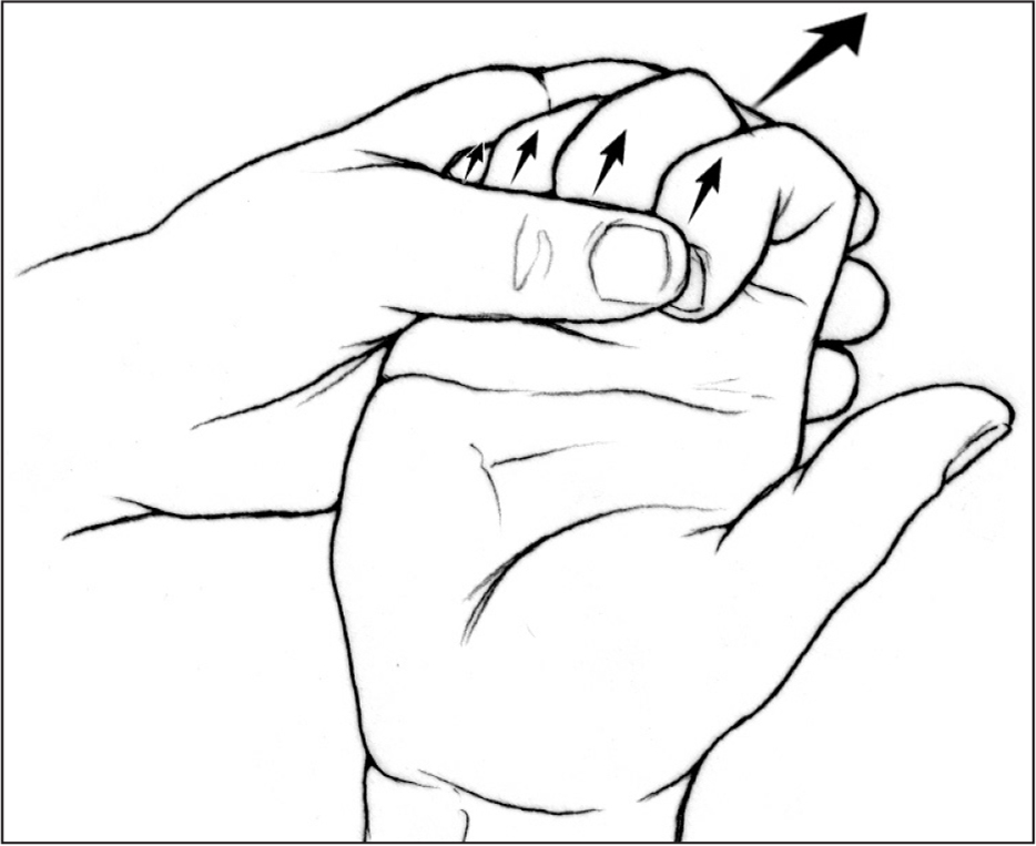 The client was instructed in low-load prolonged stretching into intrinsic minus positioning. Arrows indicate interphalangeal flexion with stretch with concomitant metacarpophalangeal extension. [Used with permission of Mayo Foundation for Medical Education and Research, all rights reserved.]