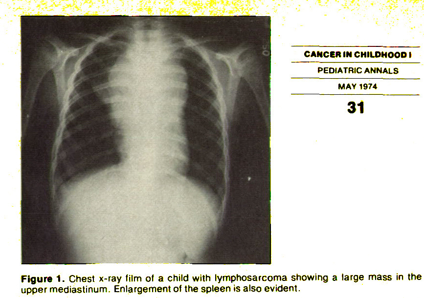 Figure 1. Chest x-ray film of a child with lymphosarcoma showing a large mass in the upper mediastinum. Enlargement of the spleen is also evident.