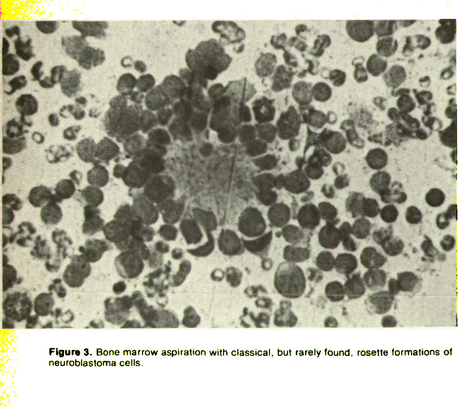 Figure 3. Bone marrow aspiration with classical, but rarely found, rosette formations of neuroblastoma cells.