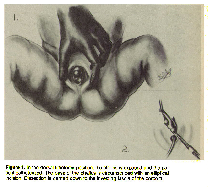 Figure 1. In the dorsal lithotomy position, the clitoris is exposed and the patient catheterized. The base of the phallus is circumscribed with an elliptical incision. Dissection is carried down to the investing fascia of the corpora.
