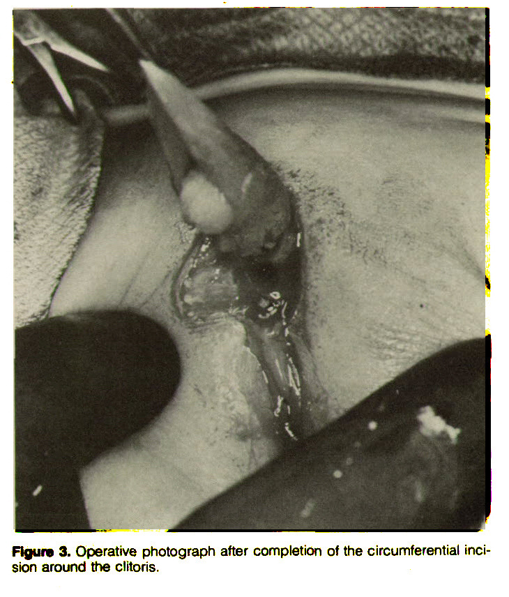 Figure 3. Operative photograph after completion of the circumferential incision around the clitoris.