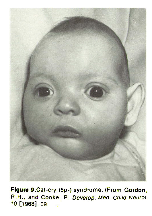 Figure 9.Cal-cry (Sp-) syndrome. (From Gordon, R. R.. and Cooke, P. Develop. Med. child Neurol 10 [1968], 69