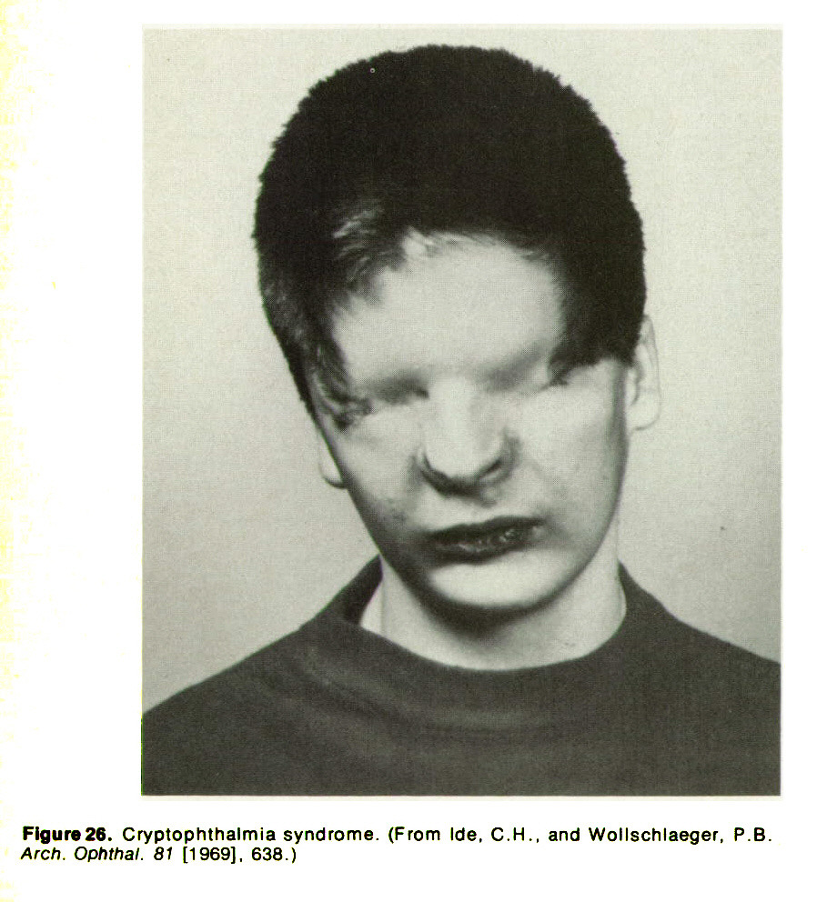 Figure 26. Cryptophthalmia syndrome. (From lde, C. H., and Wollschlaeger, P. B. Arch. Ophthal. 81 [1969], 638.)