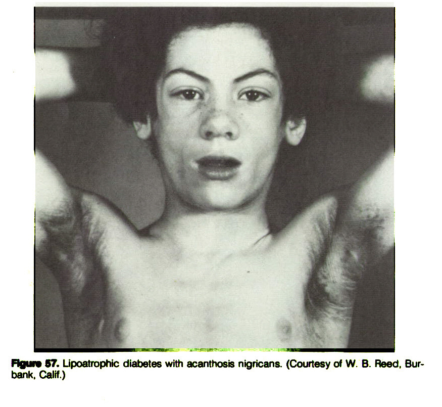 Figure 57. Lipoatrophic diabetes with acanthosis nigricans. (Courtesy of W. B. Reed, Burbank. Calif.)
