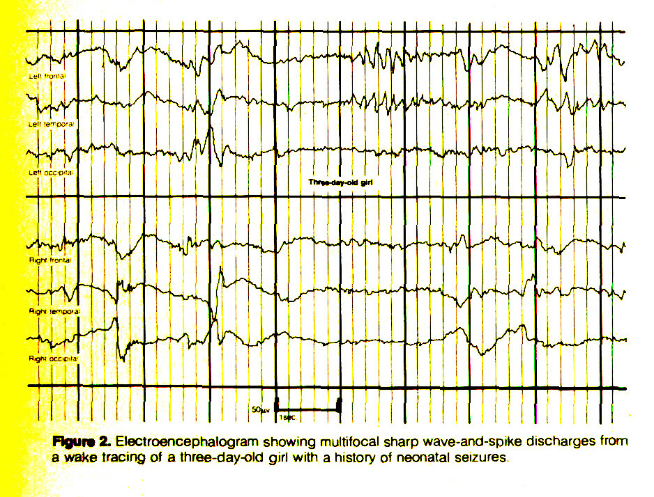 Figure 2. Electroencephalogram showing multifocal sharp wave-and-sptke discharges from a wake tracing of a three-day-old girl with a history oi neonatal seizures.