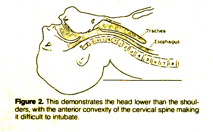 Figure 2. This demonstrates the head lower than the shoulders, with the anterior convexity of the cervical spine making it difficult to intubate.