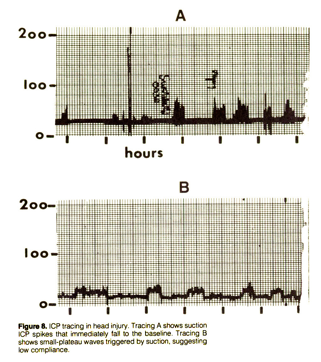 Figure 8. ICP tracing in head injury. Tracing A shows suction ICP spikes that immediately fall to the baseline. Tracing B shows small-plateau waves triggered by suction, suggesting low compliance.