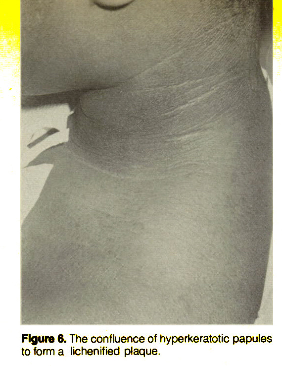 Figure 6. The confluence of hyperkeratotic papules to form a lichen itied plaque.