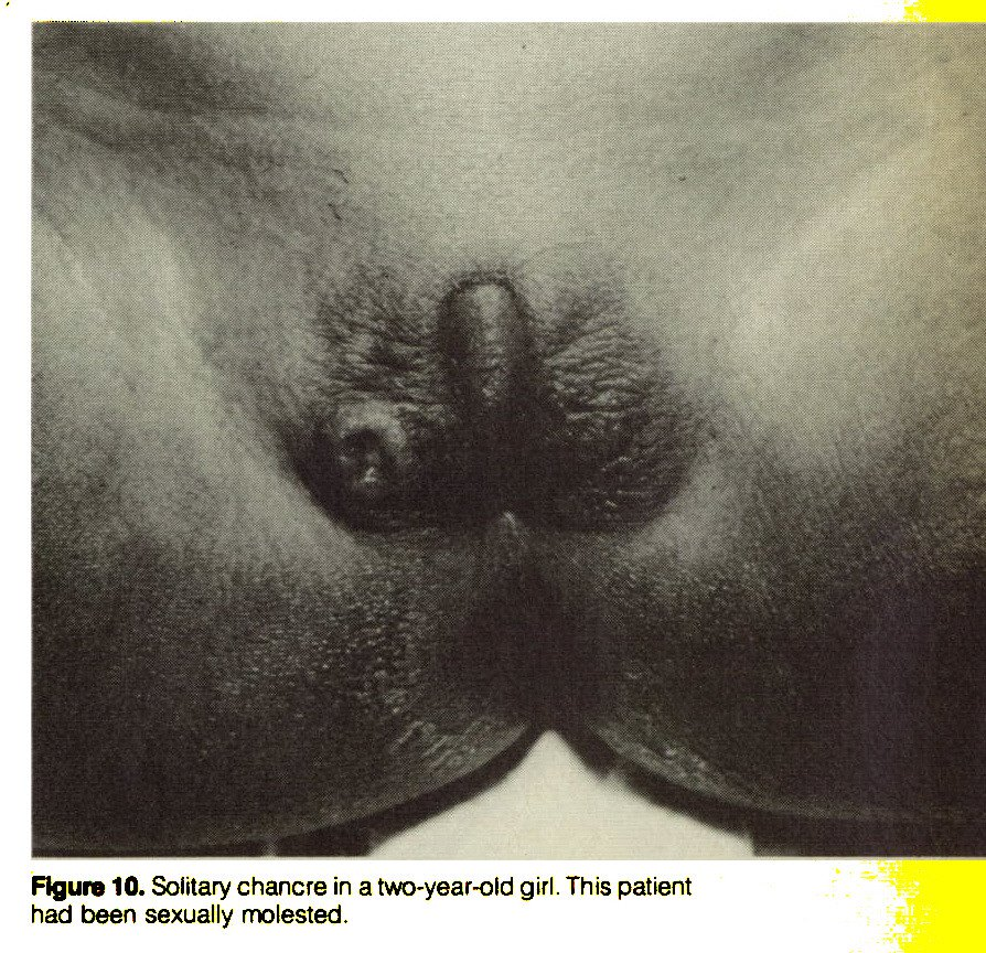 Figure 10. Solitary chancre in a two-year-old girl. This patient had been sexually molested.