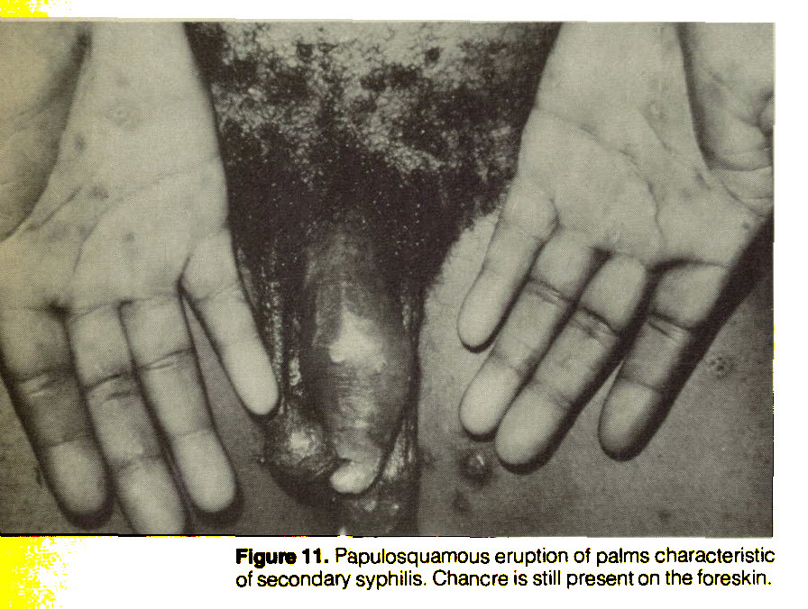 Figure 11. Papulosquamous eruption of palms characteristic of secondary syphilis. Chancre is still present on the foreskin.