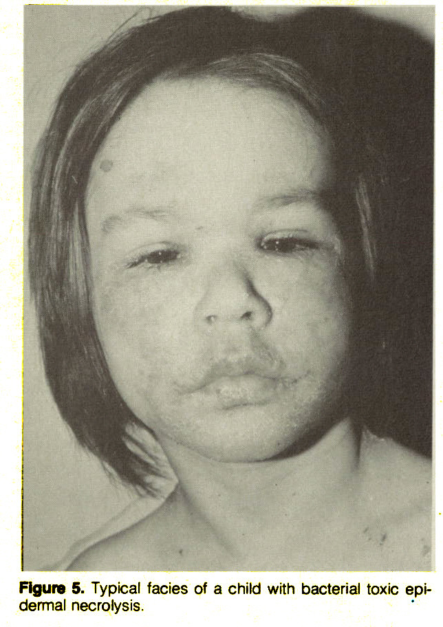 Figure 5. Typical facies of a child with bacterial toxic epidermal necrolysis.