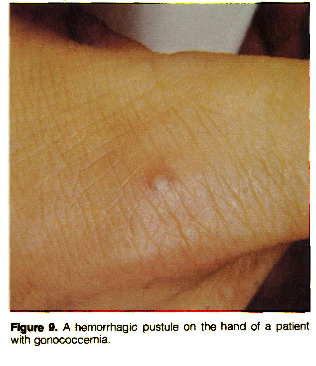 Figure 9. A hemorrhagic pustule on the hand of a patient with gonococcemia.
