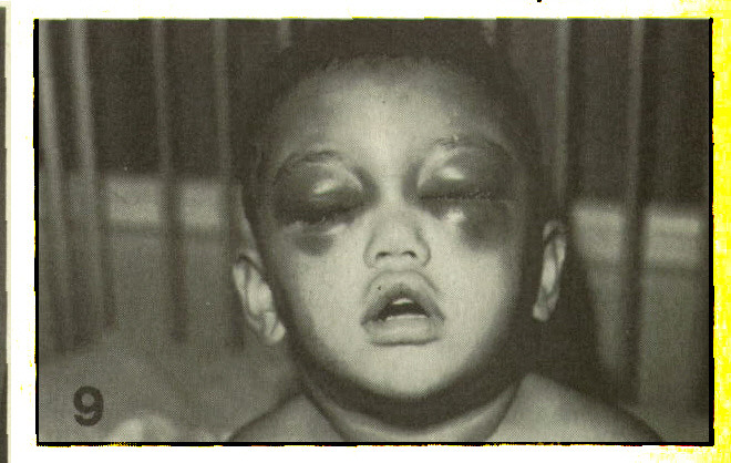 Figure 9. Repeated trauma localized in the eye area. Note lack of swelling over the anterior aspect of the frontal bone.