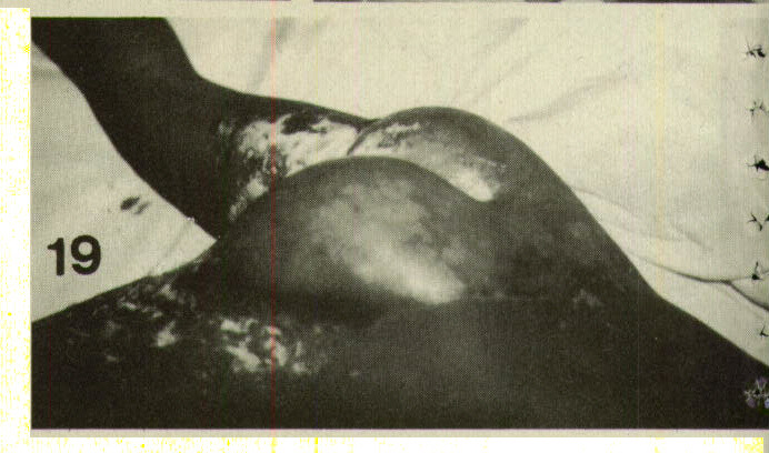 Figure 19. This patient was held in a jackknife position and buttocks were dunked in scalding water. Note distinct circular margins, with lack of burns on back and upper posterior thighs. This was an attempt to stop the patient wetting at the age of three and a half.