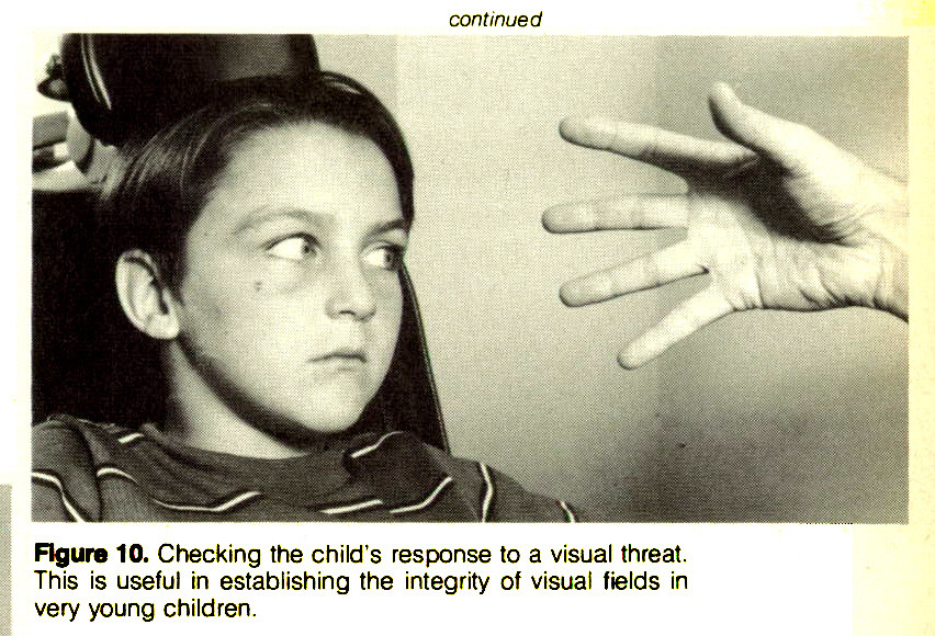Figure 10. Checking the child's response to a visual threat. This is useful in establishing the integrity of visual fields in very young children.