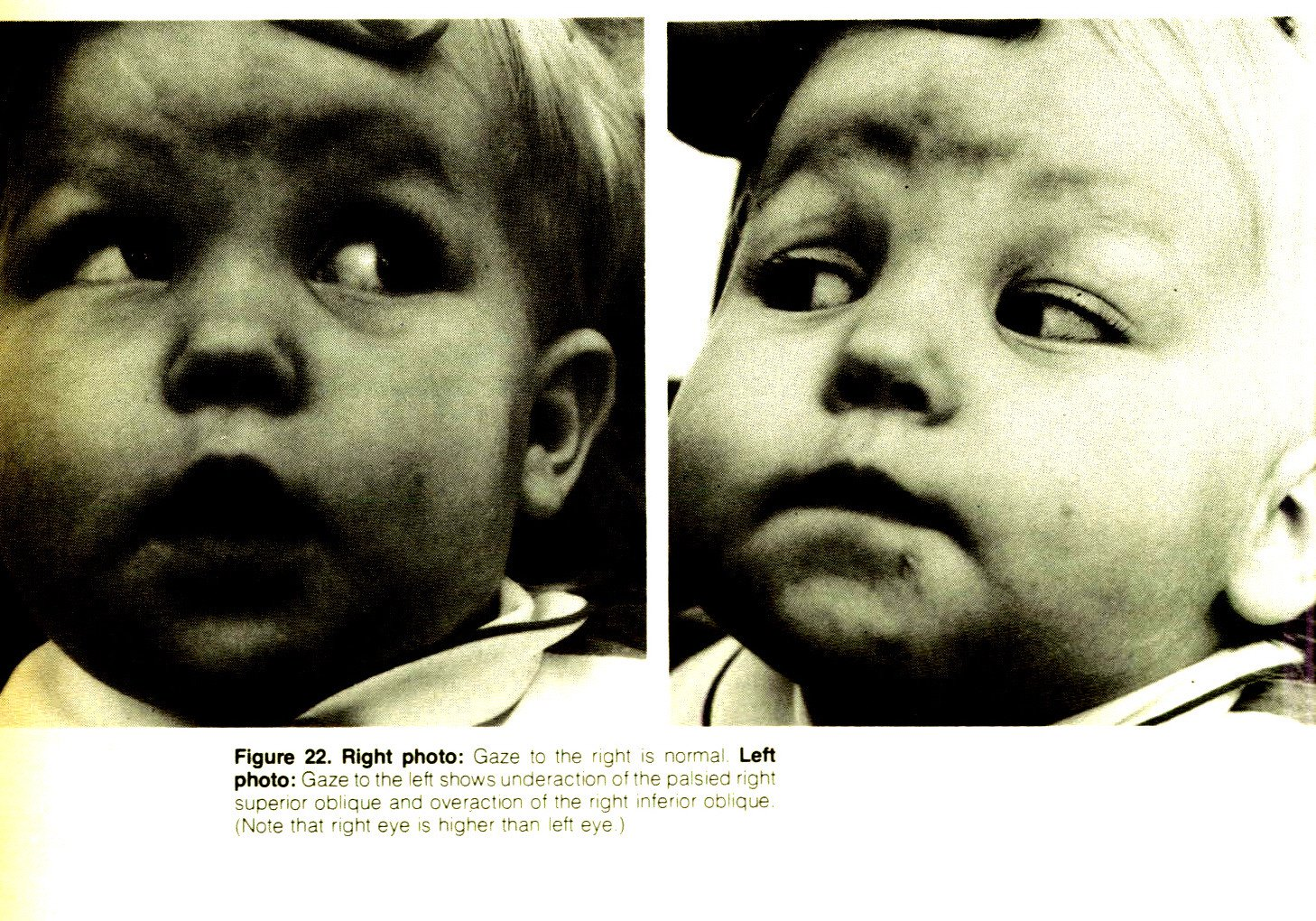 Figure 22. Right photo: Gaze to the right is norma Left photo: Gaze to the left shows underaction of the palsied right superior oblique and overaction of the right inferior oblique. (Note that right eye is higher than left eye.)