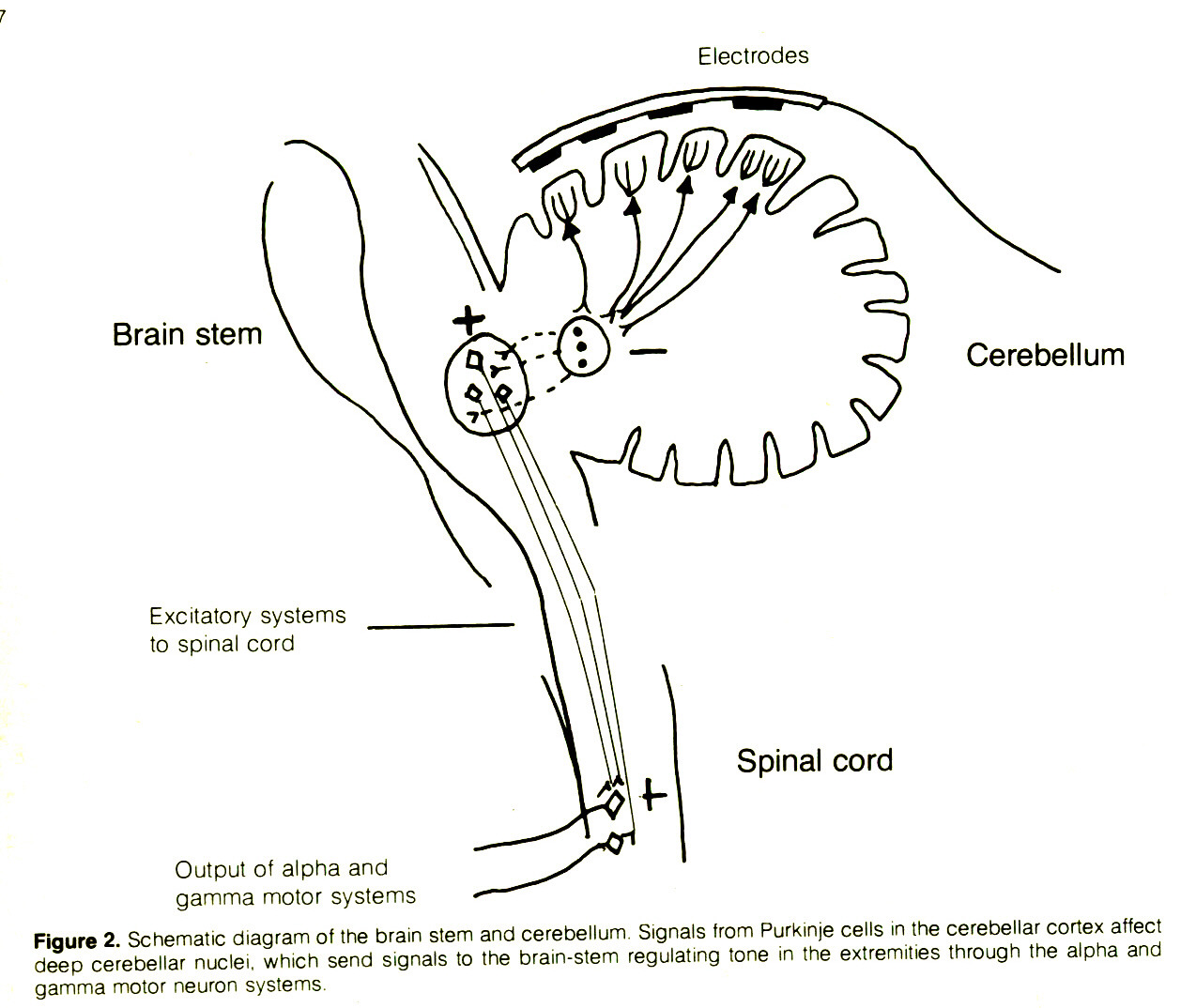 Figure 2. Schematic diagram of the brain stem and cerebellum Signals from Purkinje cells m the cerebellar cortex affect deep cerebellar nuclei, which send signals to the brain-stem regulating tone in the extremities through the alpha and gamma motor neuron systems.