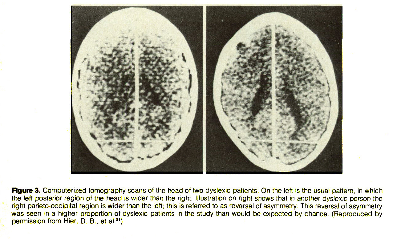Figure 3. Computerized tomography scans of the head of two dyslexic patients. On the left is the usual pattern, in which the left posterior region of the head is wider than the right. Illustration on right shows that in another dyslexic person the right parieto-occipital region is wider than the left; this is referred to as reversal of asymmetry. This reversal of asymmetry was seen in a higher proportion of dyslexic patients in the study than would be expected by chance. (Reproduced by permission from Hier, D. B., et al.21)