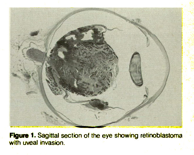 Figure 1. Sagittal section of the eye showing retinoblastoma with uveal invasion.