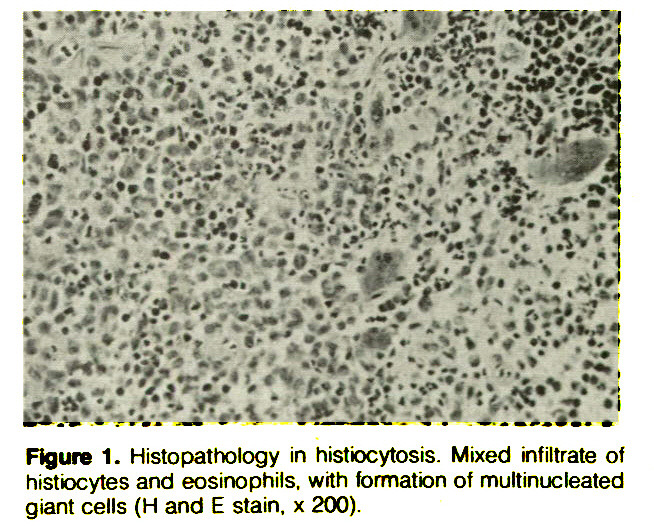 Figure 1. Histopathology in histiocytosis. Mixed infiltrate of histiocytes and eosinophils, with formation of multinucleated giant cells (H and E stain, x 200).