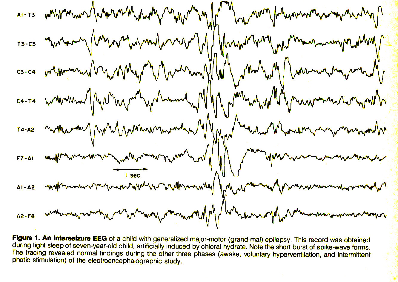 Figure 1. An Interseizure EEG of a child with generalized major-motor (grand-mal) epilepsy. This record was obtained during light sleep ot seven-year-old child, artificially induced by chloral hydrate. Note trie short burst of spike-wave forms. The tracing revealed normal findings during the other three phases (awake, voluntary hyperventilation, and intermittent photic stimulation) of the electroencephalographic study.