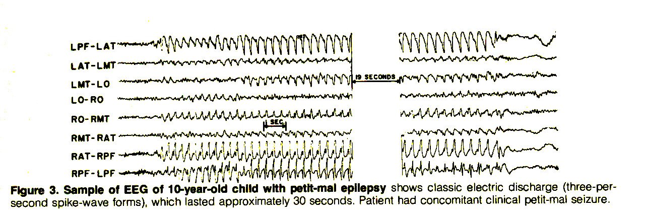 Figure 3. Sample of EEG of 10-year-old child with petit-mal epilepsy shows classic electric discharge (three-persecond spike-wave forms), which lasted approximately 30 seconds. Patient had concomitant clinical petit-mal seizure.