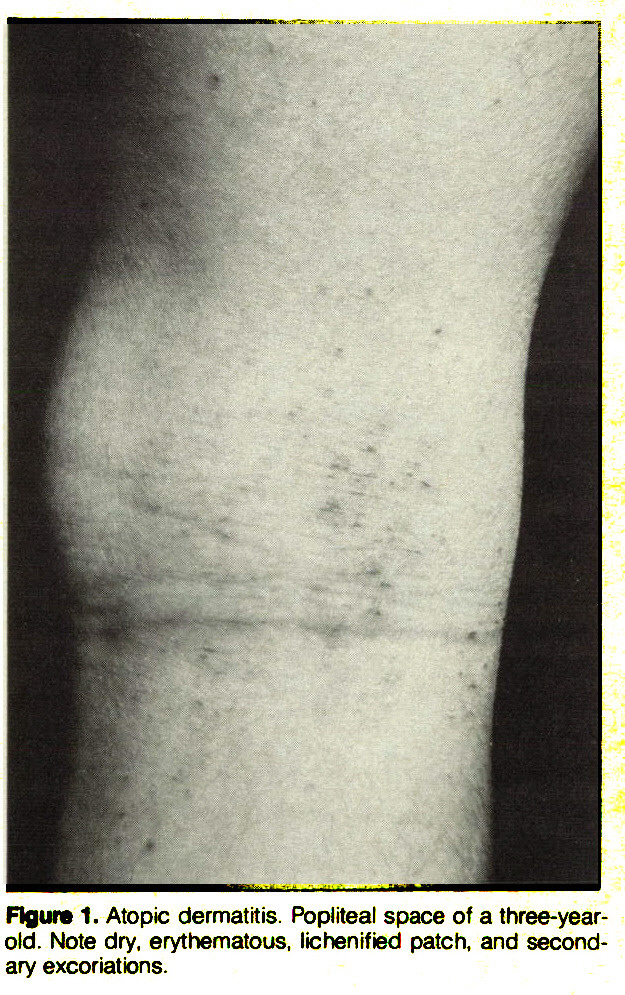 Figura 1. Atopic dermatitis. Popliteal space of a three-yearold. Note dry, erythematous, lichenified patch, and secondary excoriations.