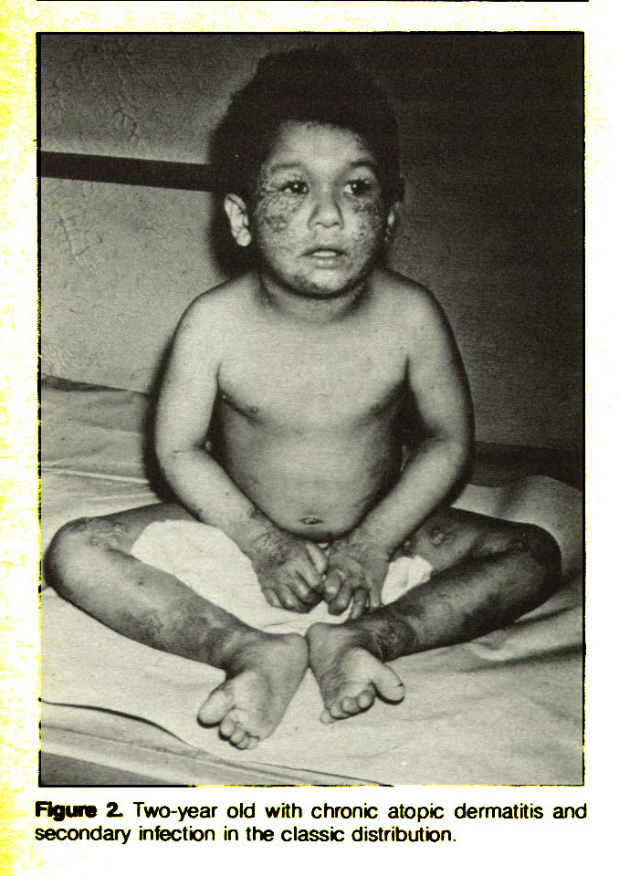 Figure 2. Two-year old with chronic atopic dermatitis and secondary infection in the classic distribution.