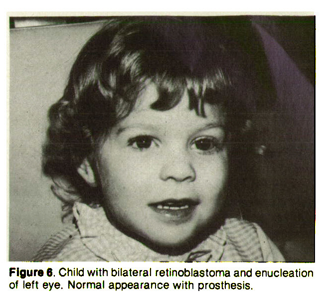 Figure 6. Child with bilateral retinoblastoma and enucleation of left eye. Normal appearance with prosthesis.