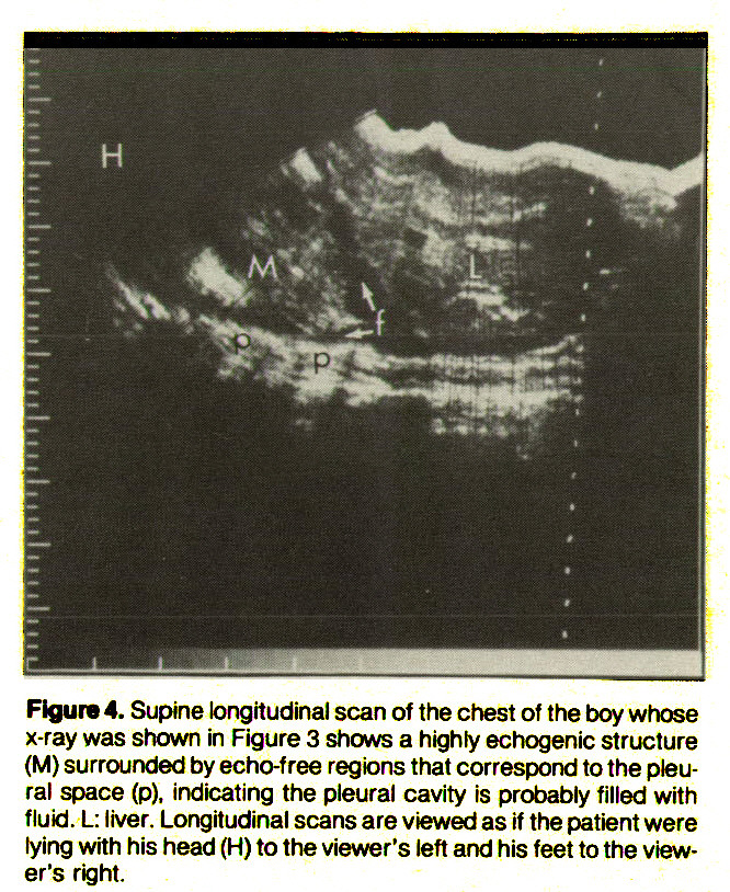 Figure 4. Supine longitudinal scan of the chest of the boy whose x-ray was shown in Figure 3 shows a highly echogenic structure (M) surrounded by echo-free regions that correspond to the pleural space (p), indicating the pleural cavity is probably filled with fluid. L: liver. Longitudinal scans are viewed as if the patient were lying with his head (H) to the viewer's left and his feet to the viewer's right.