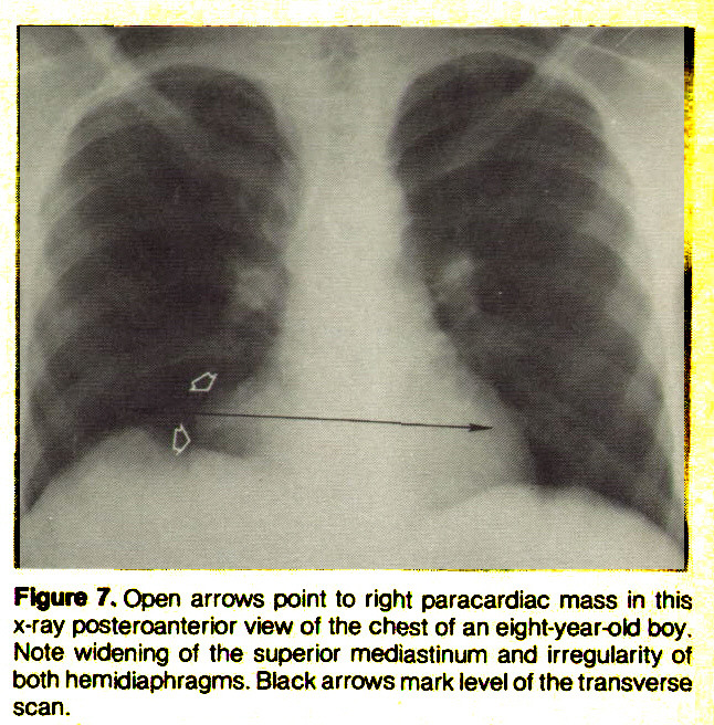 Flgure 7. Open arrows point to right paracardiac mass in this x-ray posteroanterior view of the chest of an eight-year-old boy. Note widening of the superior mediastinum and irregularity of both hemidiaphragms. Black arrows mark level of the transverse scan.
