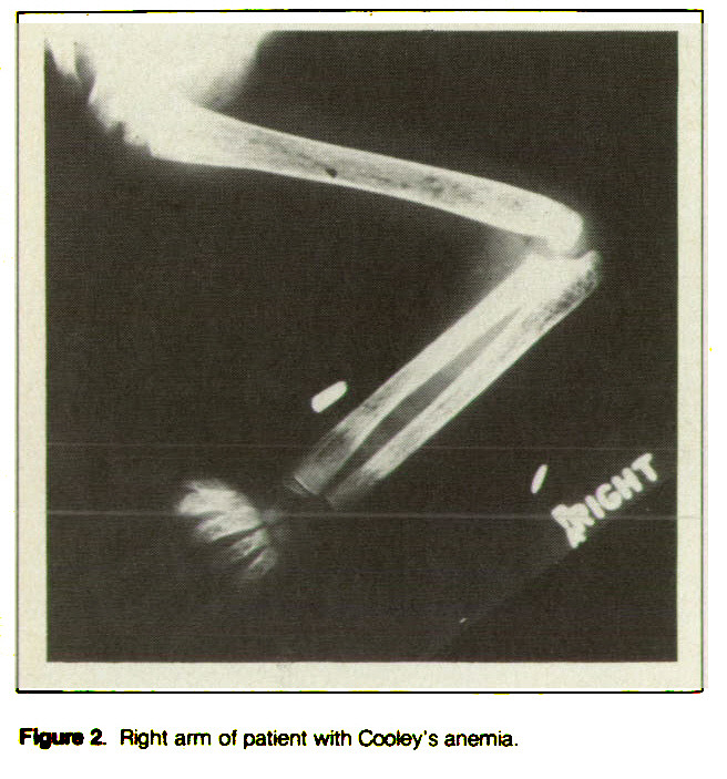 Figure 2. Right arm of patient with Cooley's anemia.