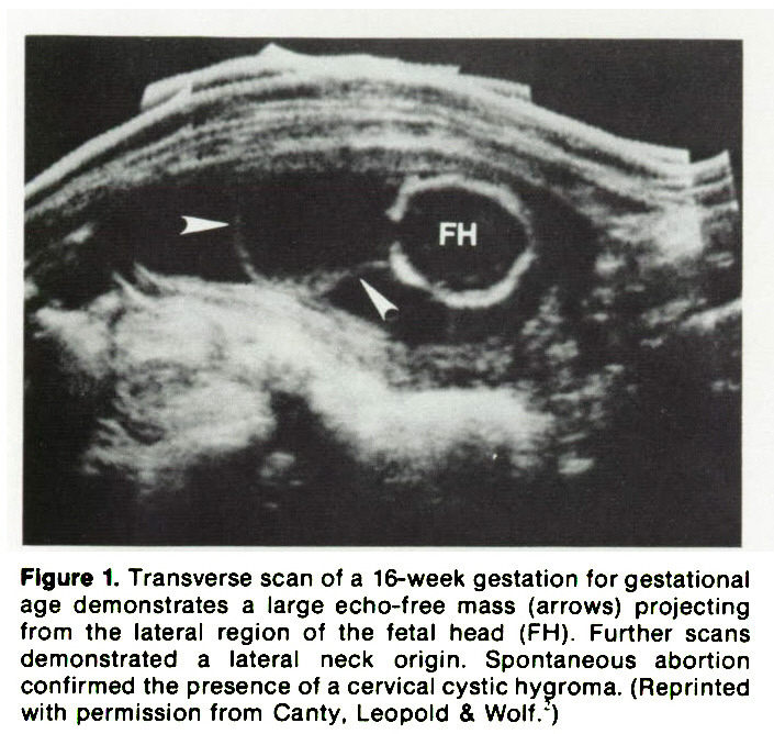 Figure 1. Transverse scan of a 16-week gestation for gestational age demonstrates a large echo-free mass (arrows) projecting from the lateral region of the fetal head (FH). Further scans demonstrated a lateral neck origin. Spontaneous abortion confirmed the presence of a cervical cystic hygroma. (Reprinted with permission from Canty, Leopold & Wolf.')