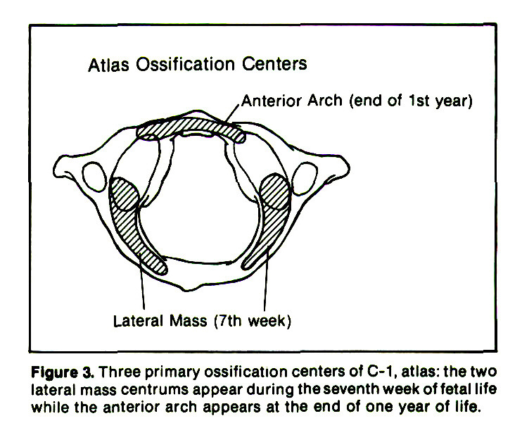 Figure 3. Three primary ossification centers of C-1, atlas: the two lateral mass centrums appear during the seventh week of fetal life while the anterior arch appears at the end of one year of life.
