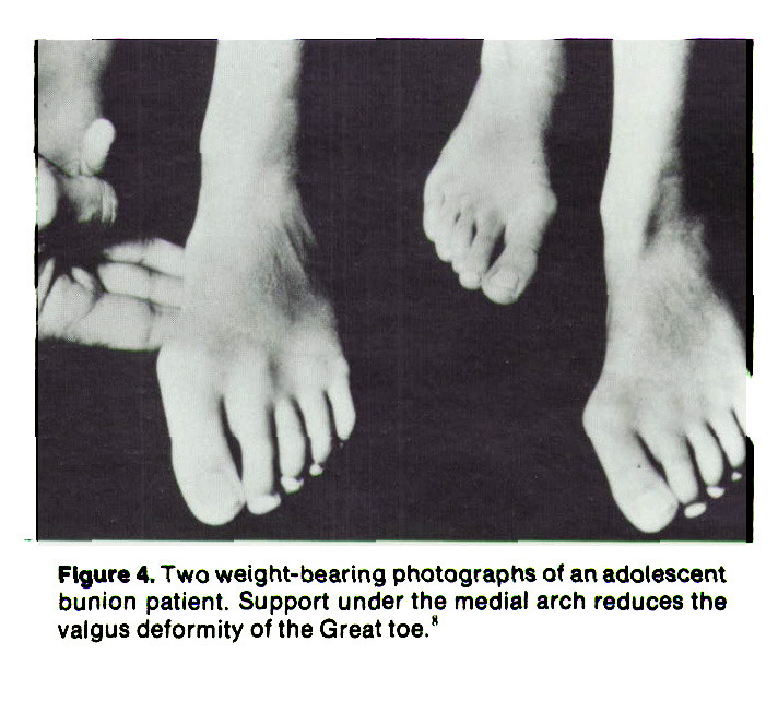 """Figure 4. Two weight- bearing photographs of an adolescent bunion patient. Support under the medial arch reduces the valgus deformity of the Great toe."""""""