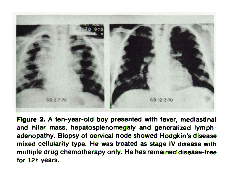 Figure 2. A ten-year-old boy presented with fever, mediastinal and hilar mass, hepatosplenomegaly and generalized lymphadenopathy. Biopsy of cervical node showed Hodgkin's disease mixed cellularity type. He was treated as stage IV disease with multiple drug chemotherapy only. He has remained disease-free for 12+ years.