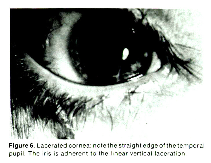 Figure 6. Lacerated cornea: note the straight edge of the temporal pupil. The iris is adherent to the linear vertical laceration.