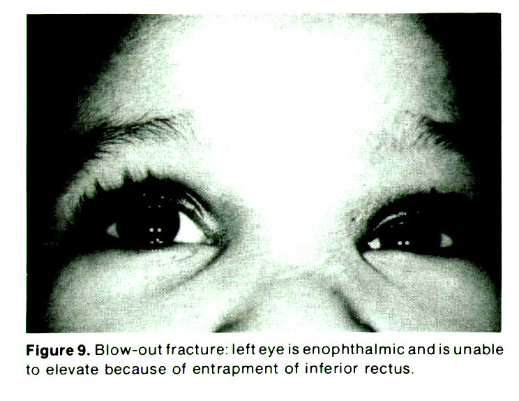Figure 9. Blow-out fracture: left eye isenophthalmicand is unable to elevate because of entrapment of inferior rectus.
