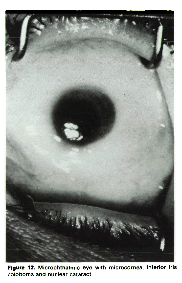 Figure 12. Microphthalmic eye with microcornea, inferior iris coloboma and nuclear cataract.