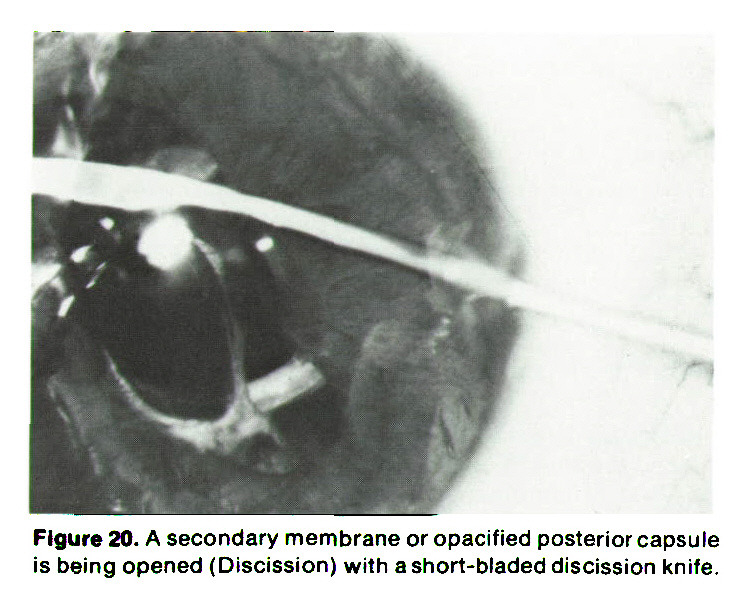 Figure 20. A secondary membrane or opacified posterior capsule is being opened (Discission) with a short-bladed discission knife.