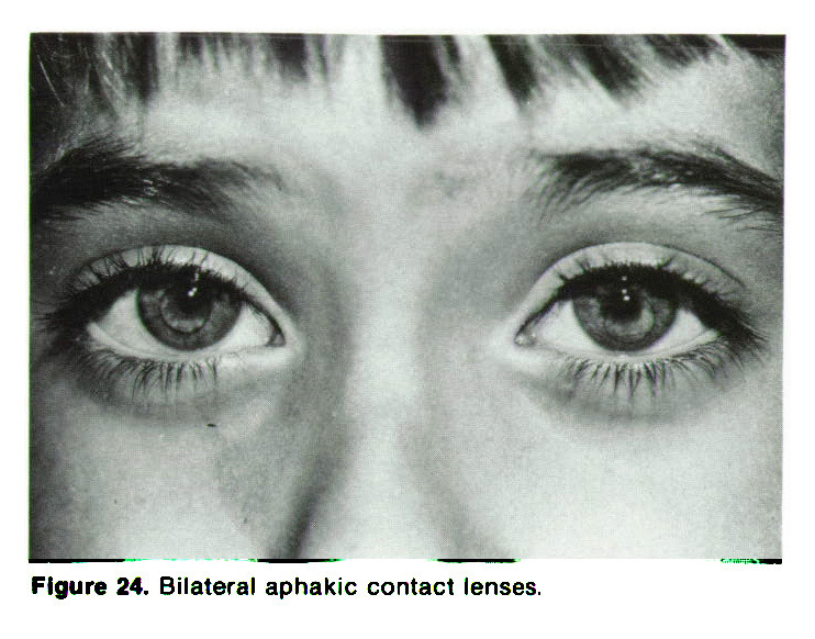 Figure 24. Bilateral aphakic contact lenses.