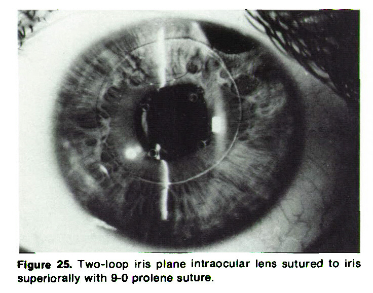 Figure 25. Two-loop iris plane intraocular lens sutured to iris superiorally with 9-0 prolene suture.