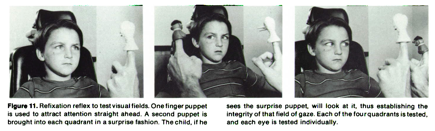 Figure 11. Refixation reflex to test visual fields. One finger puppet is used to attract attention straight ahead. A second puppet is brought into each quadrant in a surprise fashion. The child, if he sees the surprise puppet, will look at it, thus establishing the integrity of that field of gaze. Each of the four quadrants is tested, and each eye is tested individually.