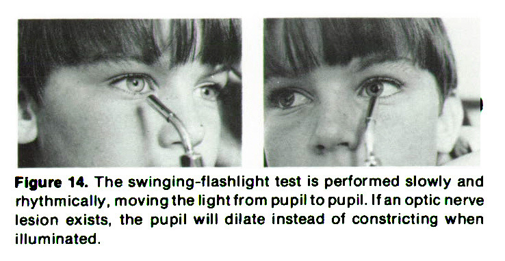 Figure 14. The swinging-flashlight test is performed slowly and rhythmically, moving the light from pupil to pupil. If an optic nerve lesion exists, the pupil will dilate instead of constricting when illuminated.