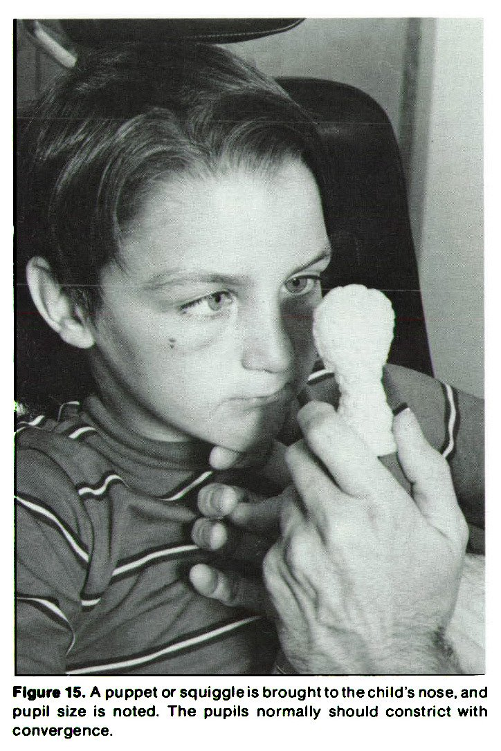 Figure 15. A puppet or squiggle is brought to the child's nose, and pupil size is noted. The pupils normally should constrict with convergence.