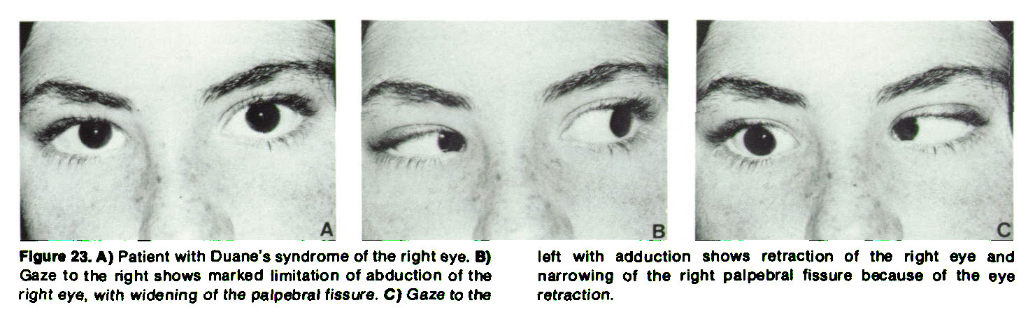 Figure 23. A) Patient with Duane's syndrome of the right eye. B) Gaze to the right shows marked limitation of abduction of the right eye, with widening of the palpebral fissure. C) Gaze to the left with adduction shows retraction of the right eye and narrowing of the right palpebral fissure because of the eye retraction.